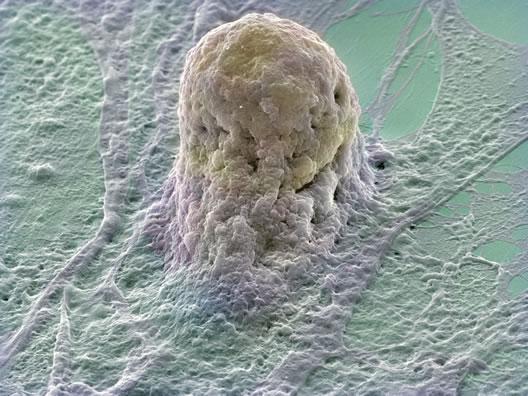 Inimese loote tüvirakk - seda uurides üritatakse jälile saada nt Parkinsoni ja Alzheimeri tõbede tekkepõhjustele.